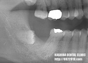 implant51