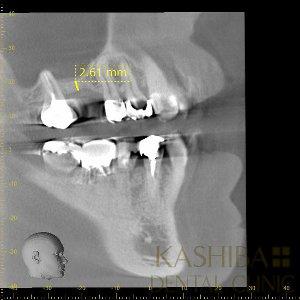 implant54