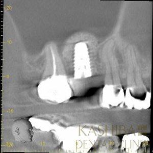 implant56