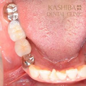 implant57