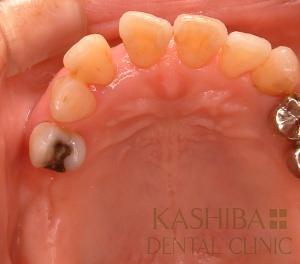 implant60