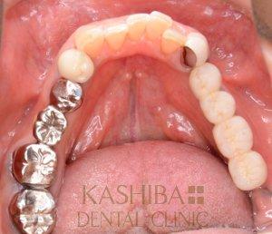 implant65