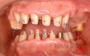 implant66