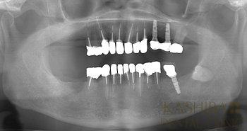 implant68