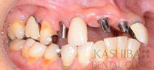 implant71