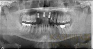 implant78