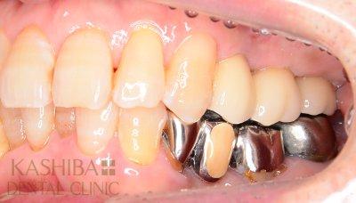 implant81