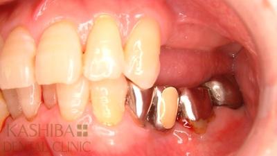 implant82