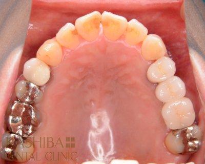 implant87