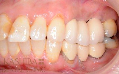 implant88