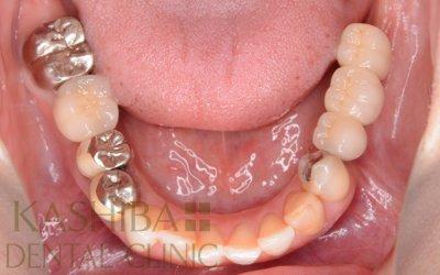 implant101