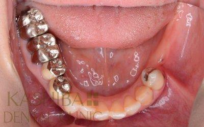 implant90