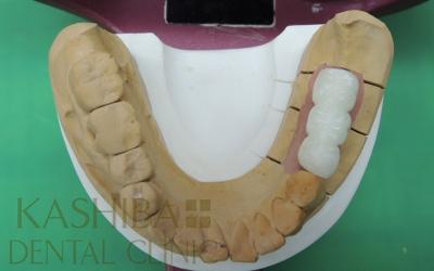 implant93