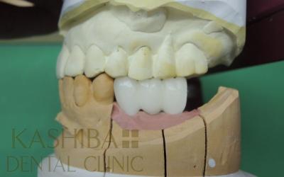 implant94