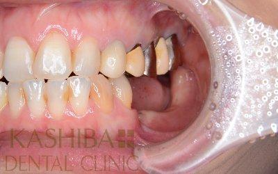 implant95