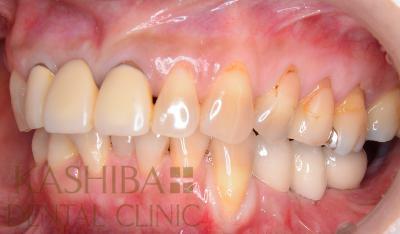 implant105