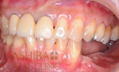 implant106