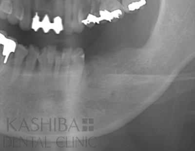 implant109