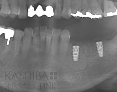 implant110