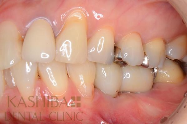 implant117